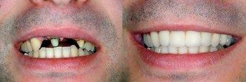 Smile Gallery - Ashton Dental, Aurora Dentist
