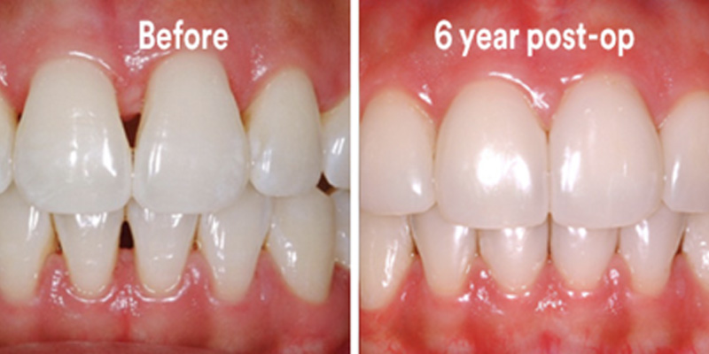 BioClear Diastema Closure and Black Triangle Closure  - Ashton Dental, Aurora Dentist