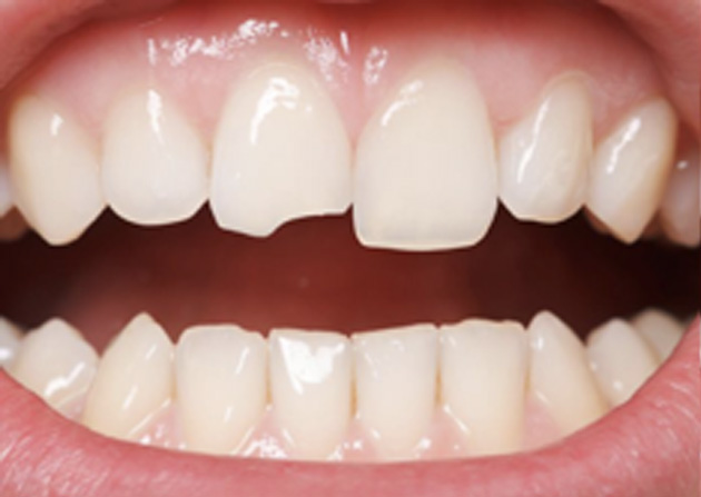 Cosmetic Bonding  - Ashton Dental, Aurora Dentist
