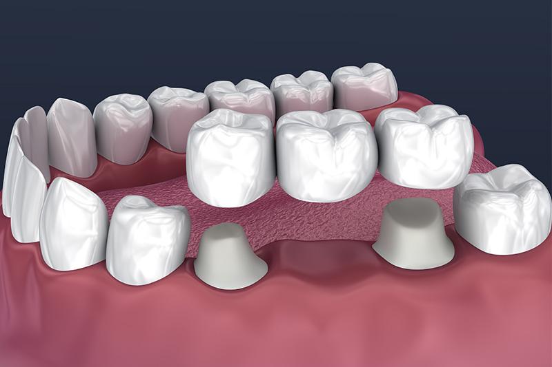 Crowns and Bridges, Inlays and Onlays  - Ashton Dental, Aurora Dentist