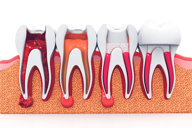 Root Canal Therapy  - Ashton Dental, Aurora Dentist