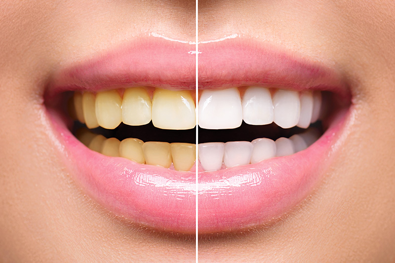 Teeth Whitening - Ashton Dental, Aurora Dentist