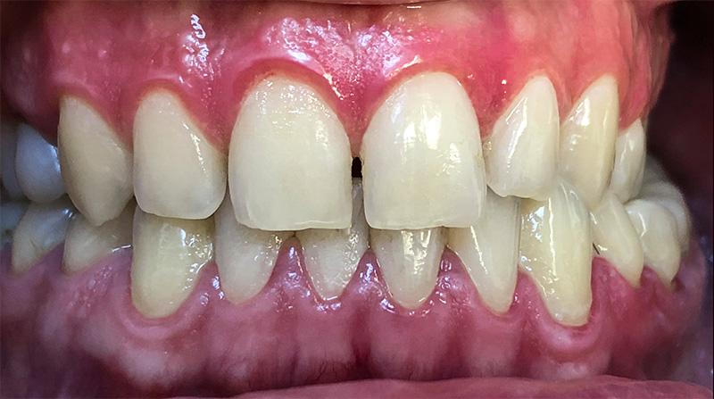 Veneers  - Ashton Dental, Aurora Dentist