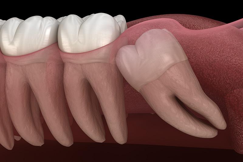 Wisdom Teeth Extractions (with Sedation)  - Ashton Dental, Aurora Dentist