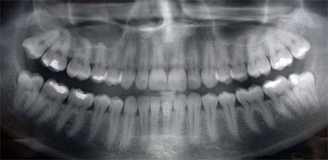 Ashton Dental